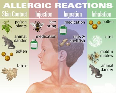 allergic-reactions