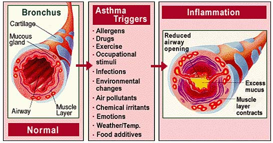 Sick House Doctor | Sick House Syndrome | Sick Home - Asthma Images